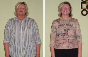 loss patient gallery medical weight loss programs are individualized ...