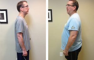 Weight Loss before & after - side profile